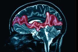 Gebelik ve epilepsi sara hastalığı