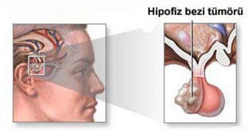 hiperprolaktinemi, süt hormonu fazlalığı
