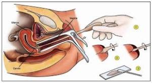 rahim-agzi-kanser-tarama--smear--testi