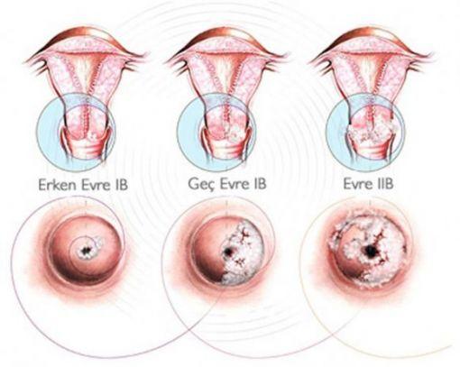 rahim ağzı kanseri, serviks kollum kanseri evreleri