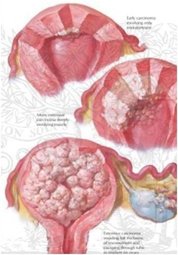 rahim kanserinin yayılması