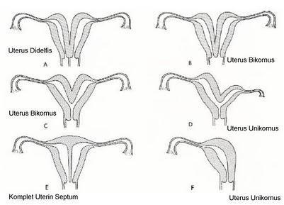 rahim ve vajina anomalileri
