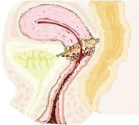 serviks kollum rahim ağzı kanseri